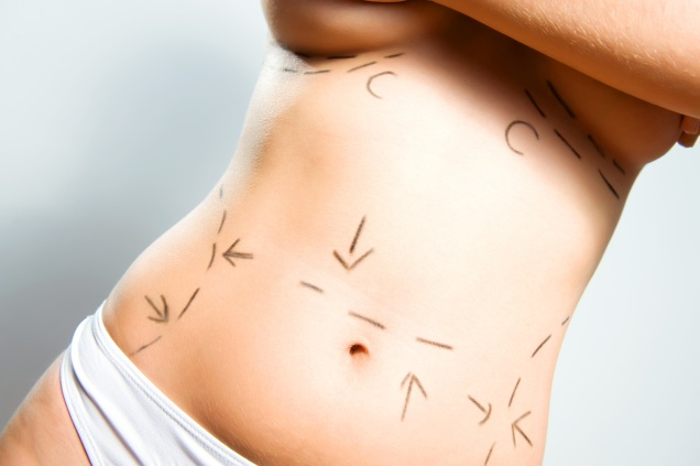 Breast augmentation and abdominal cosmetic surgeries